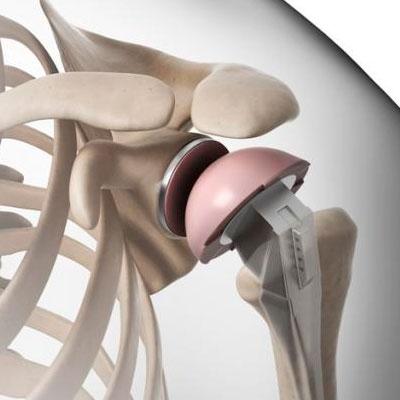 Реабилитация после эндопротезирования плеча