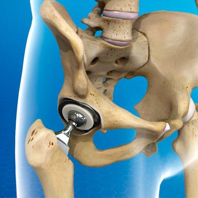 Методы эндоротезирования тазобедренного сустава